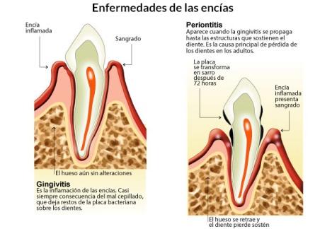 periodontitis-